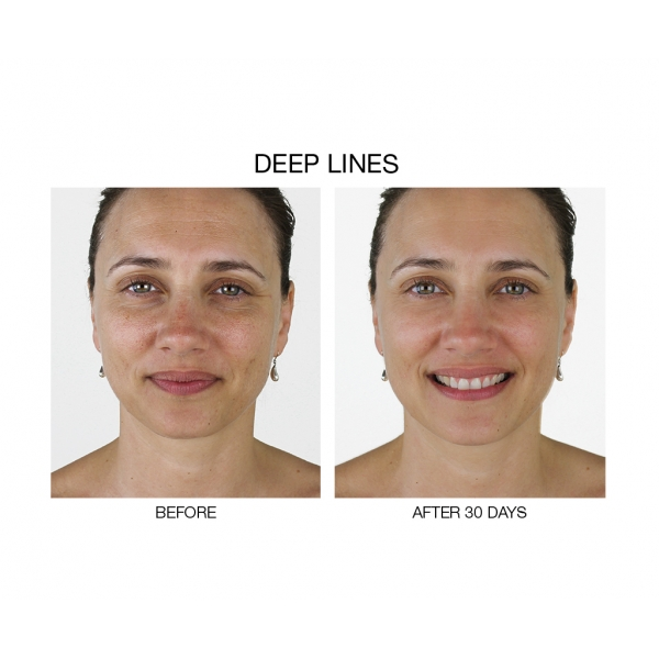 new-youth-switch-dna-stem-cell-booster-face